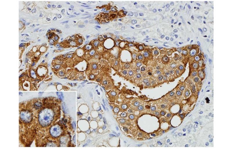 Descubren el vínculo entre un retrovirus y el cáncer de próstata
