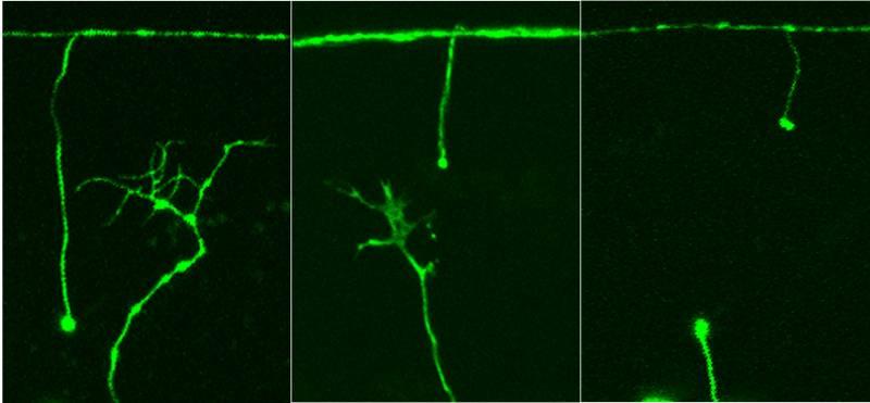 Descubren una nueva vía para regenerar nervios lesionados a partir de un gen de gusano
