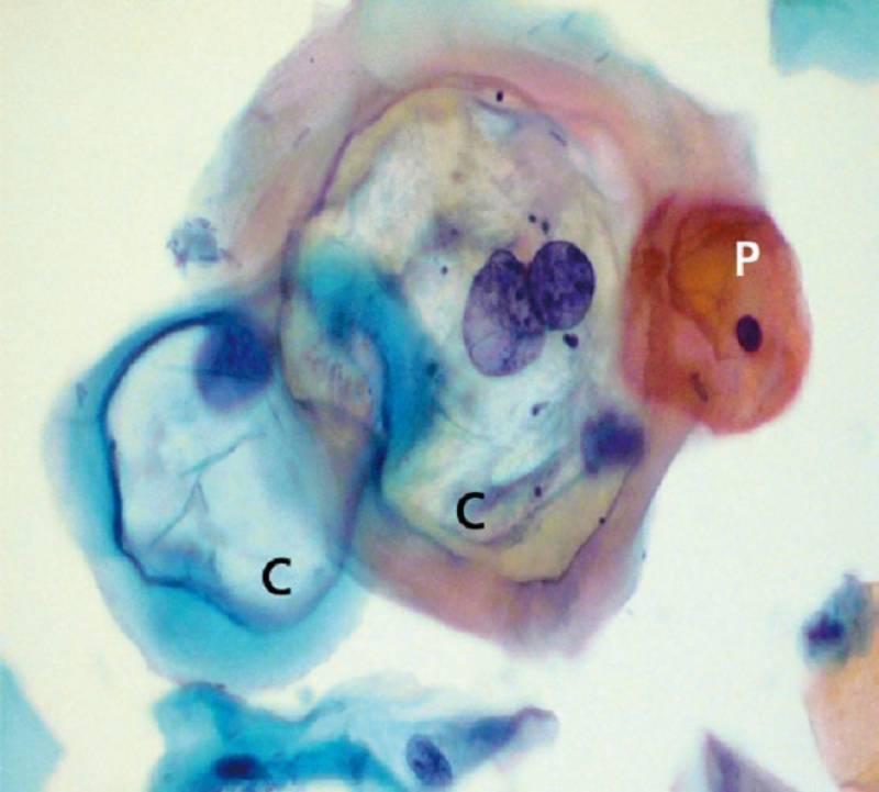 células uterinas