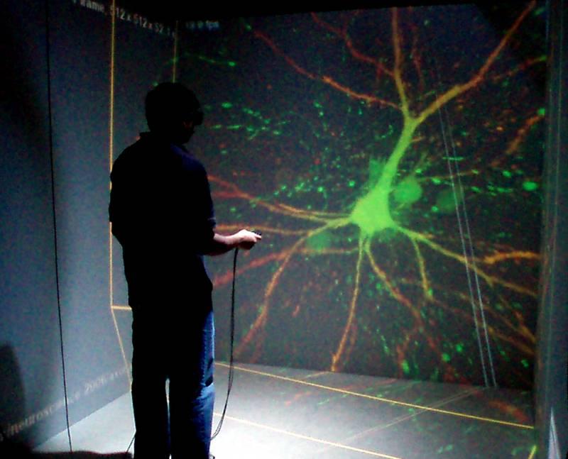 El interior del cerebro en 3D