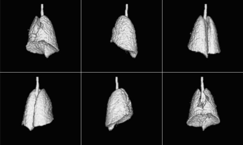 Toma de imágenes pulmonares