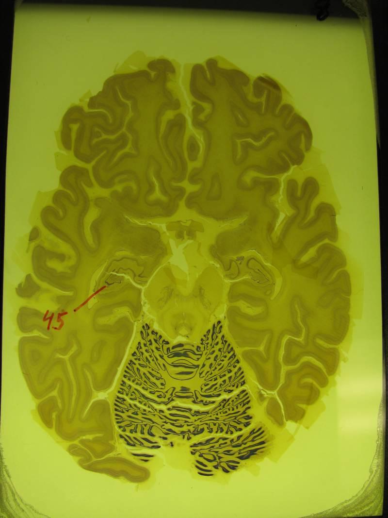 Una reducción del hipocampo en el cerebro precede al mal de Alzheimer