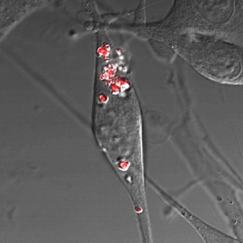 Aumentan la eficiencia de los fotocatalizadores en el tratamiento contra el cáncer