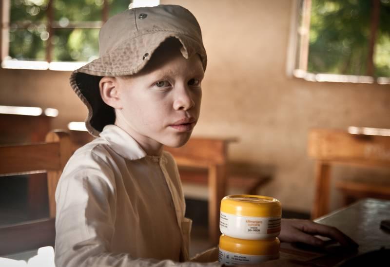 Un niño con albinismo con la crema Kilimanjaro Suncare. / Daniel Losada
