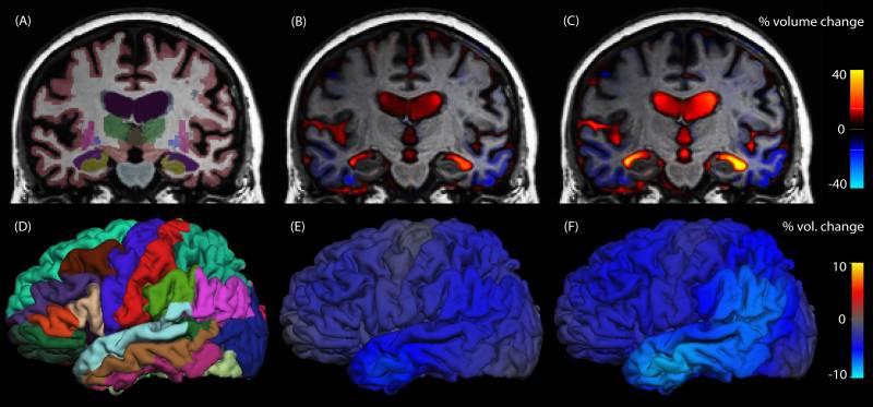 Analizan los cambios estructurales del cerebro en la enfermedad de Alzheimer