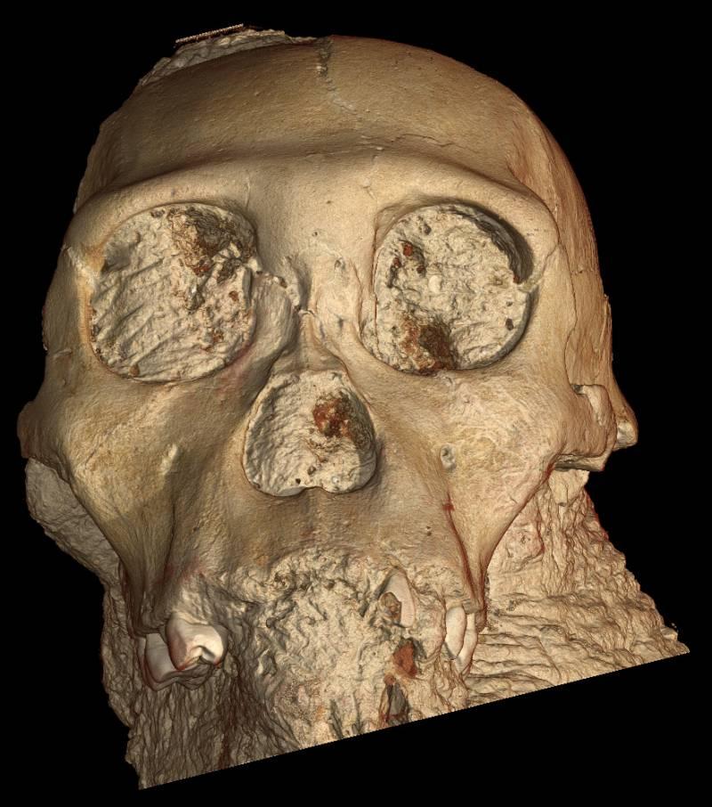 Los primeros estudios del nuevo ancestro humano se realizan con el sincrotrón europeo