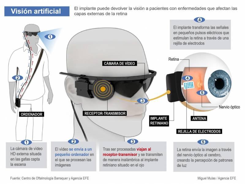 En esta infografía se explica qué y cómo funciona un ojo biónico./ Efe