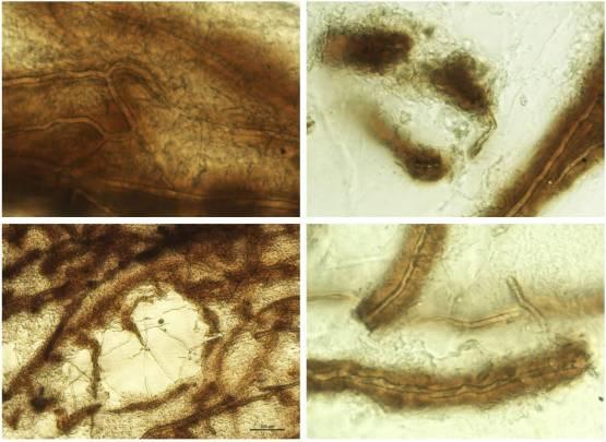 Micrografías que demostran a resposta inmune á afanomicose. Imaxe: Laura Martín Torrijos.