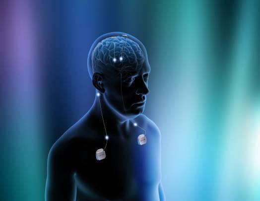 Esquema del implante de un dispositivo de estimulación cerebral profunda. / Health Science Center