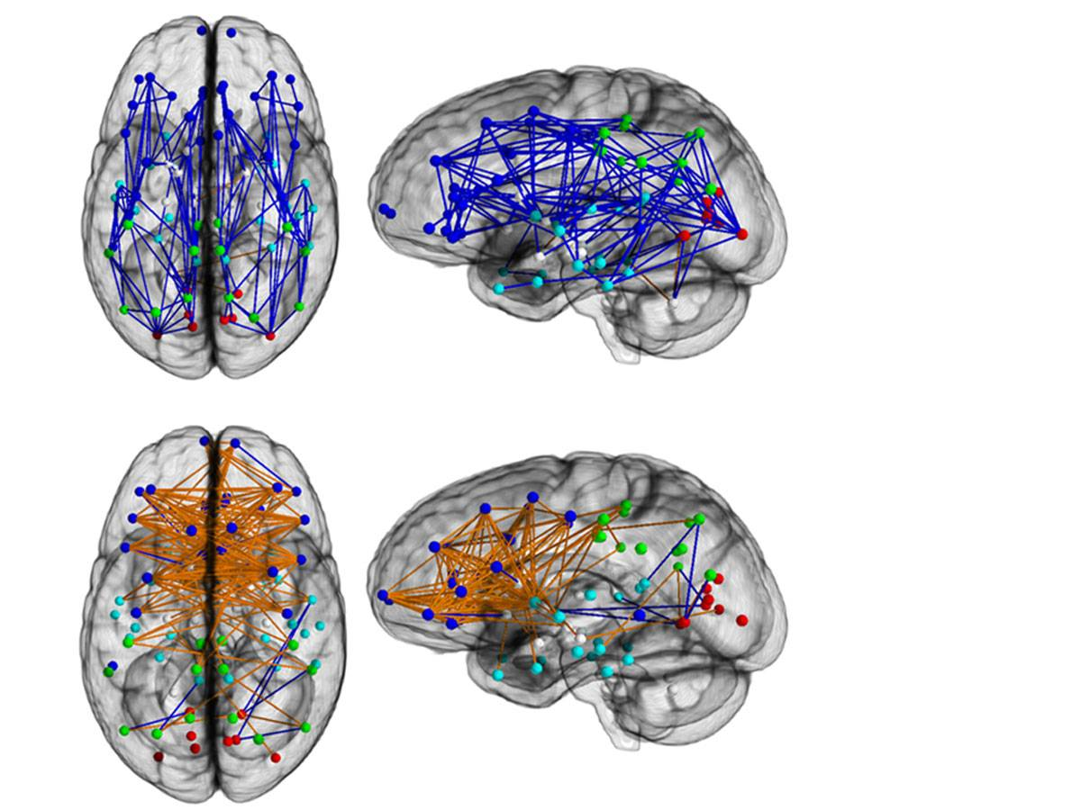 En la parte superior el cerebro masculino, en la inferior el femenino. En azul, las conexiones en un mismo hemisferio, en naranja los circuitos entre hemisferios. / PNAS