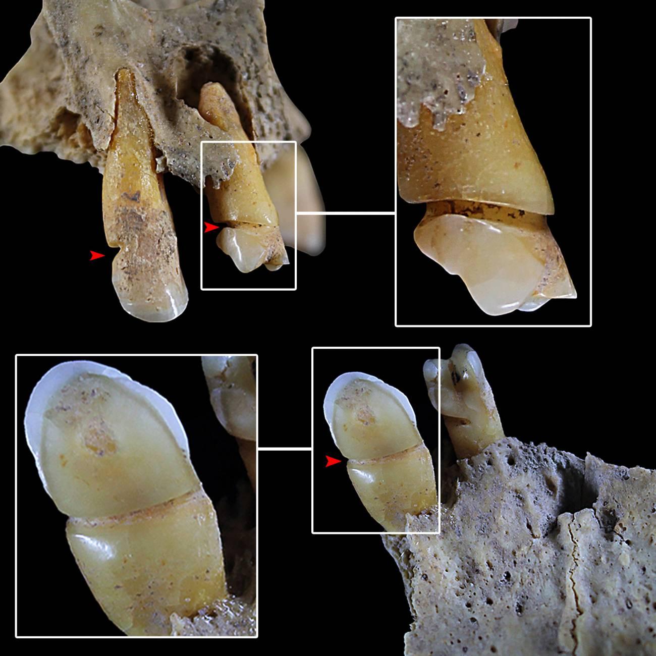 Dentición del individuo 90 de Castellón Alto con evidencias de uso para masticatorio de la dentición. / Ángel Rubio Salvador