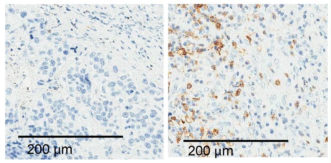Los tumores de pulmón contienen diferentes cantidades de células inmunitarias (marrones) dependiendo, en parte, de la cantidad de ALAL-1 que producen. / CIMA