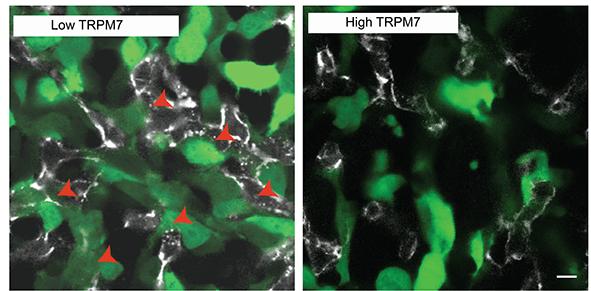Células cancerosas (verde) que ingresan a los vasos sanguíneos (blanco) de un embrión de pollo