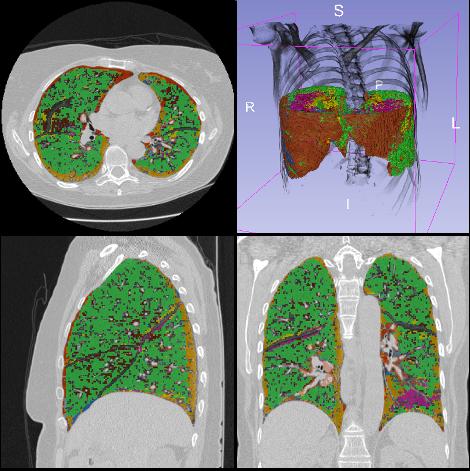 diferentes tipos de tejido pulmonar