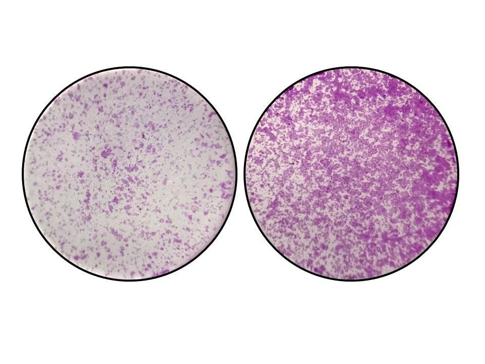 """El efecto de perder el gen TYW2 y el nucleótido """"Y"""" en cáncer de colon. En la imagen de la izquierda se observan células del colon con niveles normales de TYW2 y la pieza """"Y"""". En la imagen de la derecha, cuando sucede la perdida de TYW2 y el nucleótido """"Y"""", las células del cáncer de colon empiezan a migrar de forma descontrolada."""