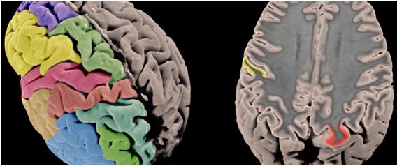 Superficie y grosor de la corteza cerebral