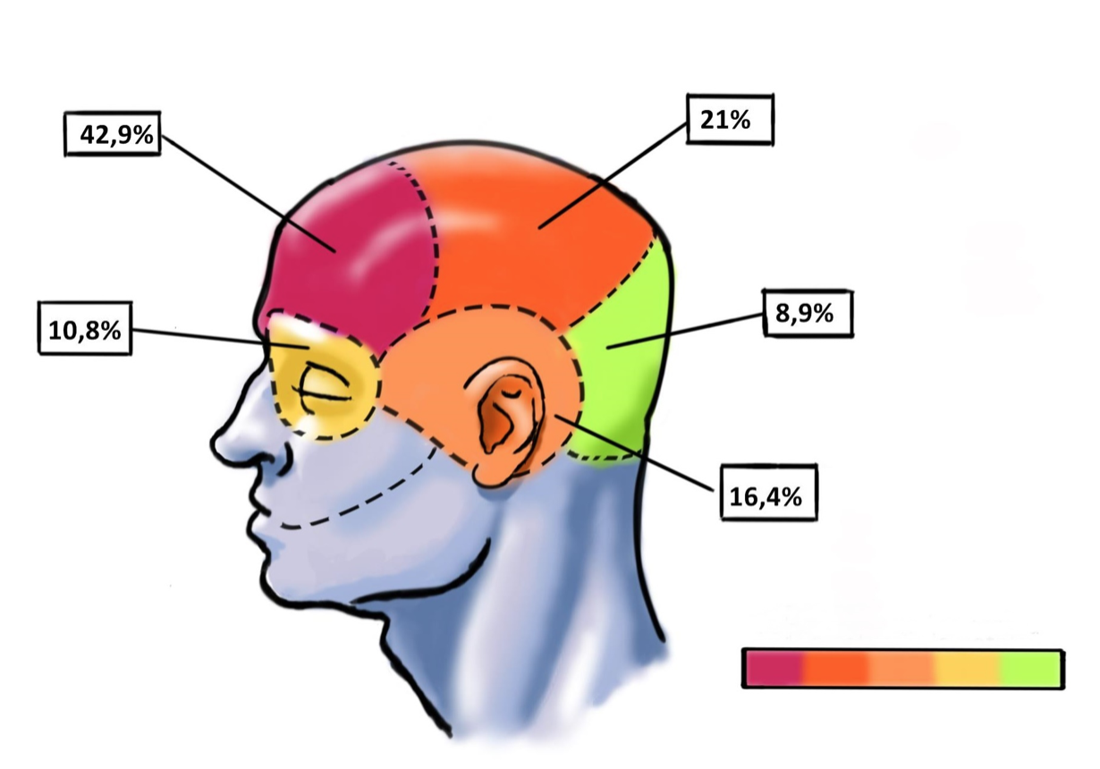zonas con dolor de cabeza