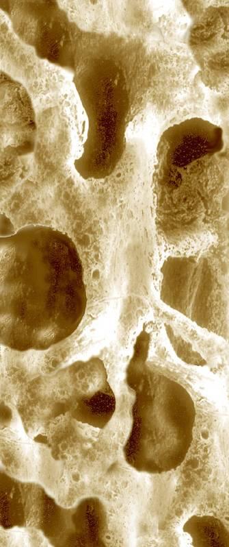 hueso osteoporosis