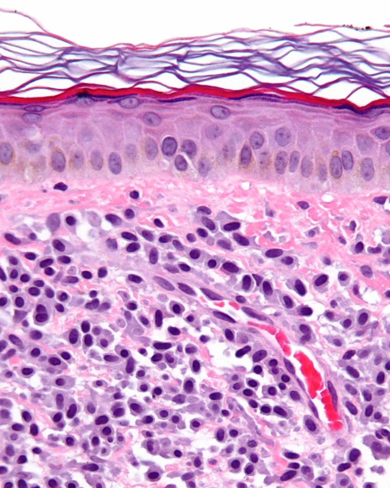 Micrografía de una mastocitosis. Biopsia de piel. Imagen: Wikipedia