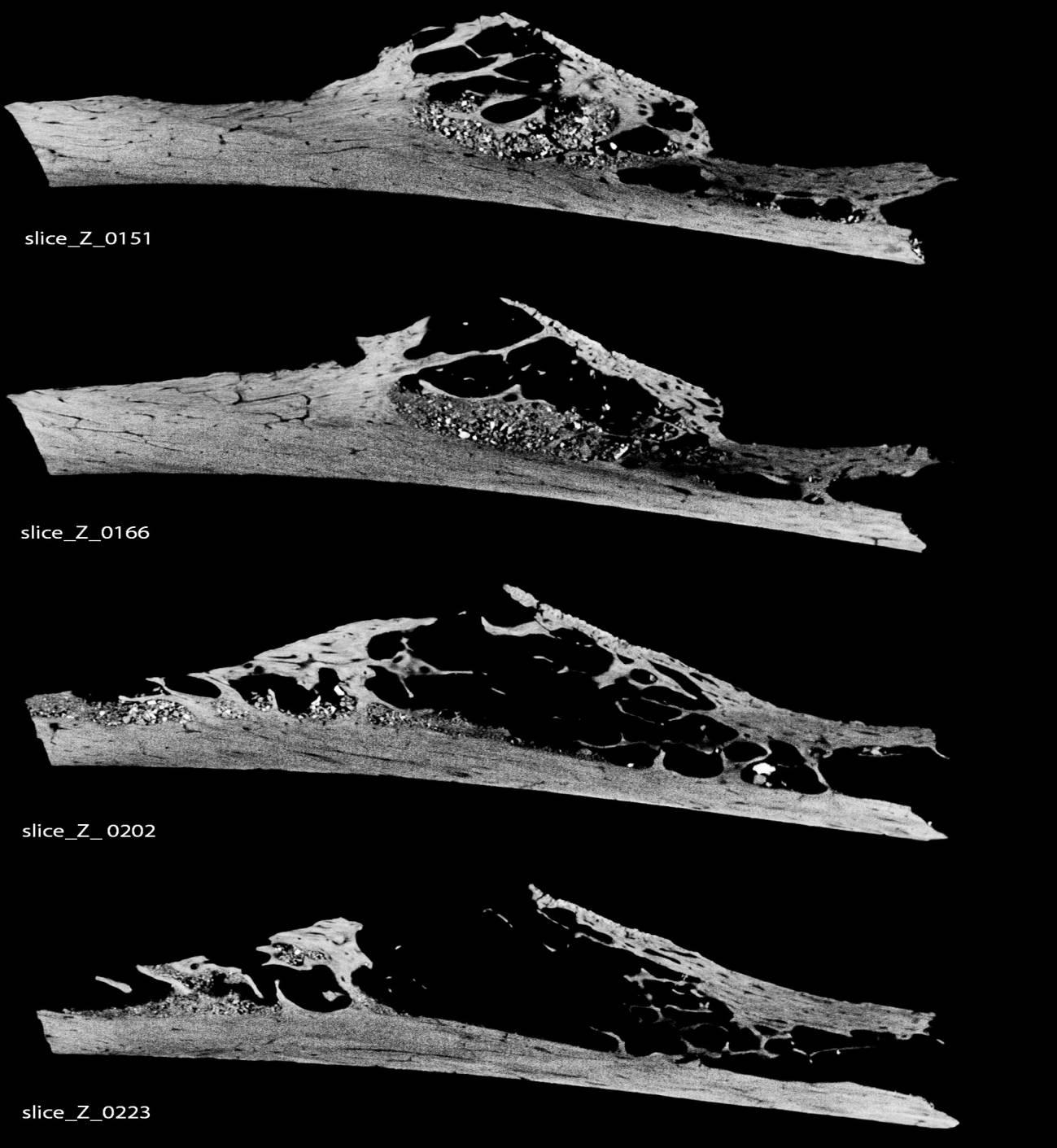 La costilla cancerosa fue recuperada en la famosa excavación arqueológica de la ciudad croata de Krapina. / Penn Museum