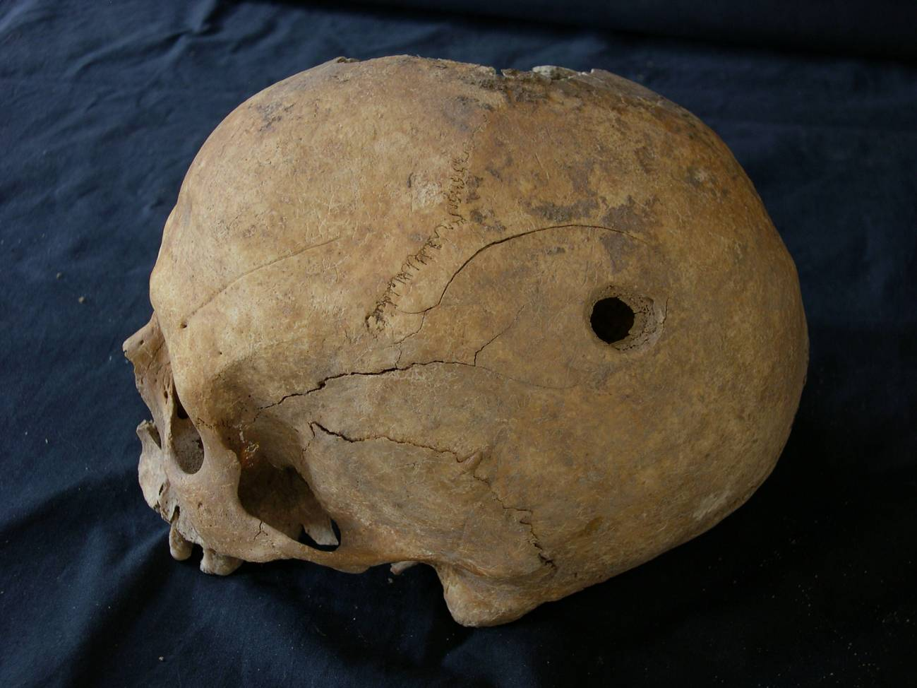 Cráneo trepanado. Imagen: Esther Gómez López.