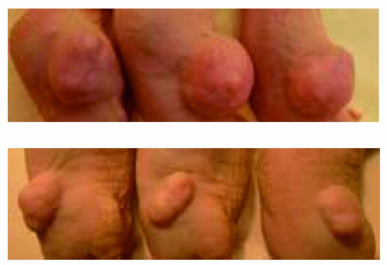 Ejemplo de tres tumores de colon (imagen arriba) cuyo crecimiento fue inhibido (imagen debajo) por la molécula de ARN (acido ribonucleico) identificada que actúa como antioncogén. Imagen: IDIBELL