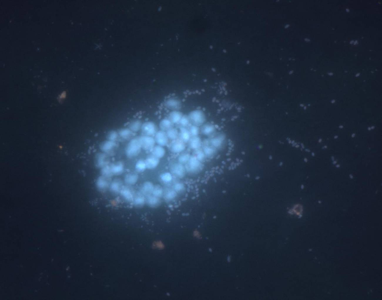 Imagen de microscopio de epifluorescencia conteniendo diferentes morfologías microscópicas no identificadas presentes en las saladas de Monegros. Crédito: A Pena-Baixeras. / CSIC.