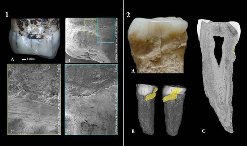 Primer premolar derecho y segundo premolar izquierdo, Atapuerca. / CENIEH.