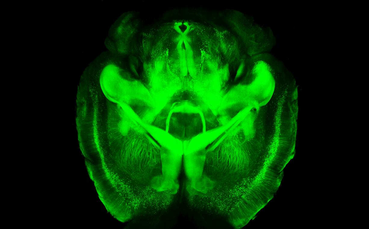 La nueva técnica permite observar un cerebro de ratón transparente. / K. Chung et al. (Univ. Stanford)
