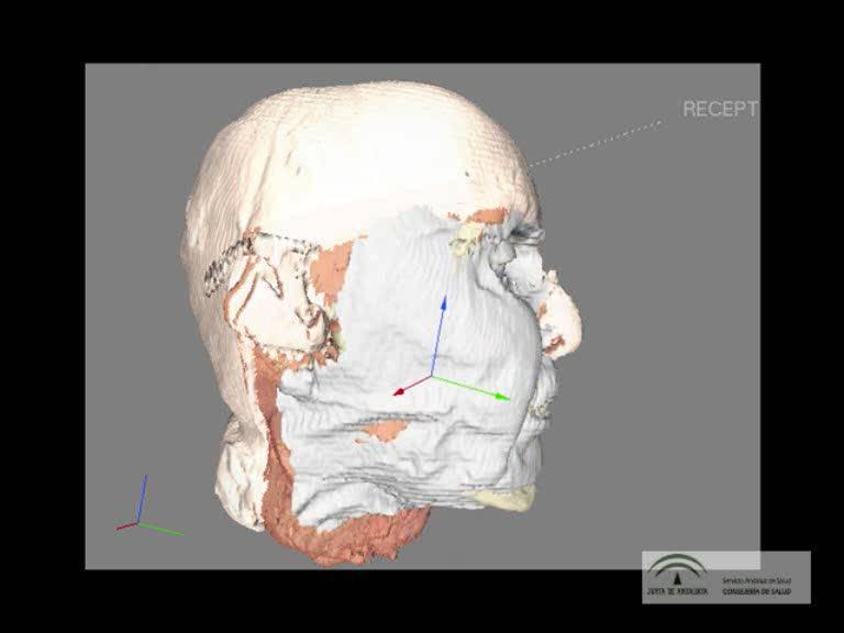 Explican la planificación quirúrgica del trasplante de rostro de Sevilla