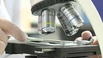 El gen estudiado es el MC1R.