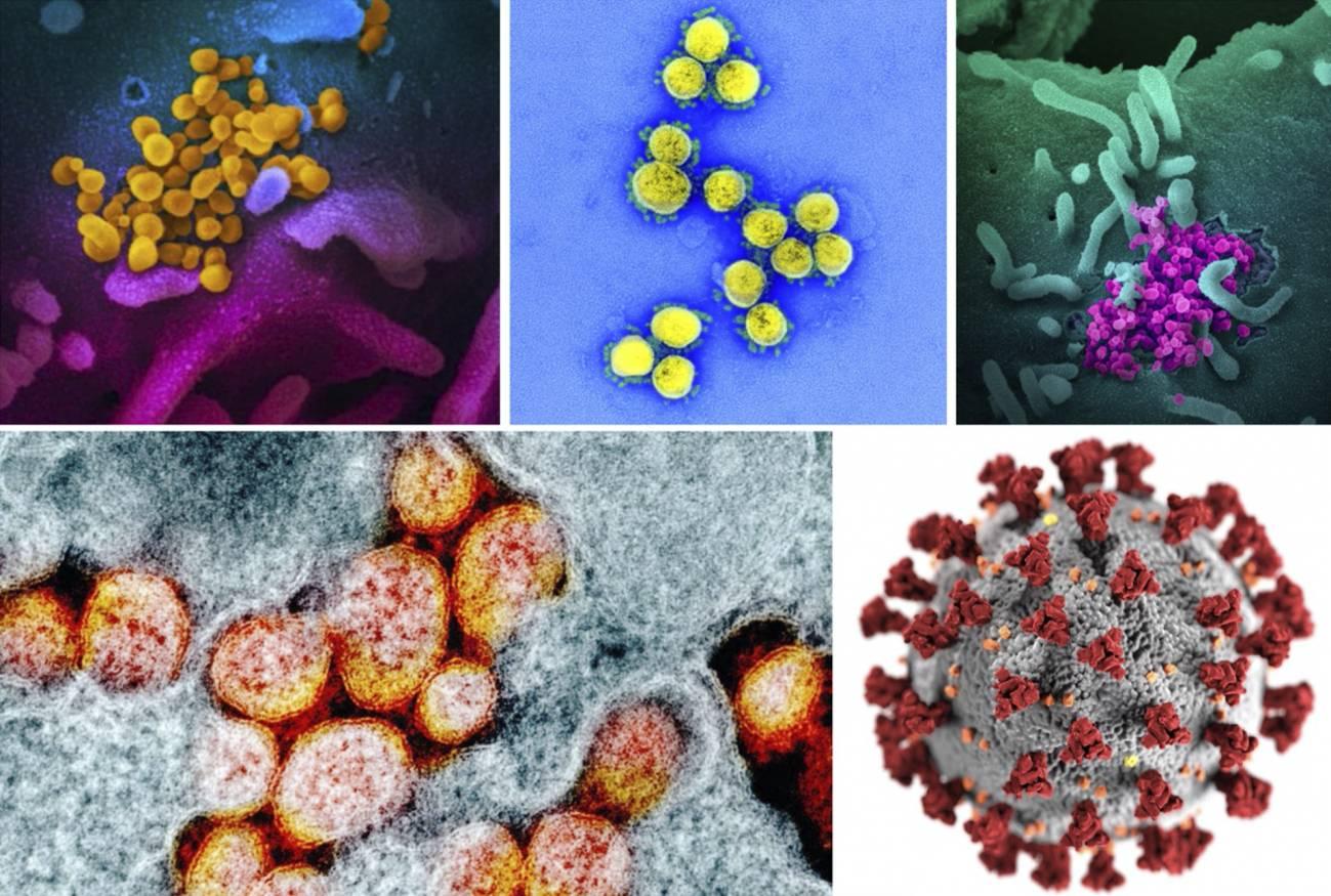 Los medios de comunicación han embellecido la imagen del coronavirus
