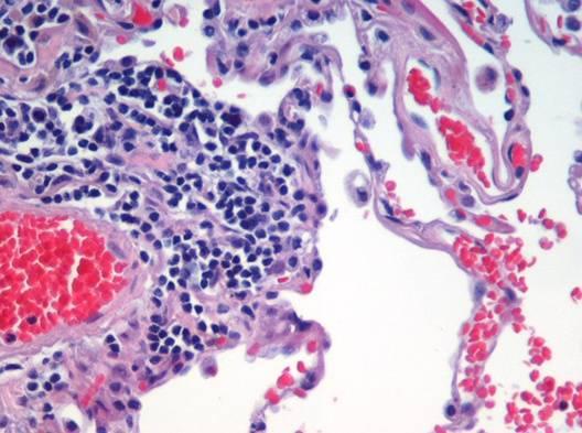 Tejido pulmonar con enfisema. Foto: Wikipedia.