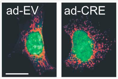 La imagen refleja el cambio en la forma de las mitocondrias de fibroblastos de ratón
