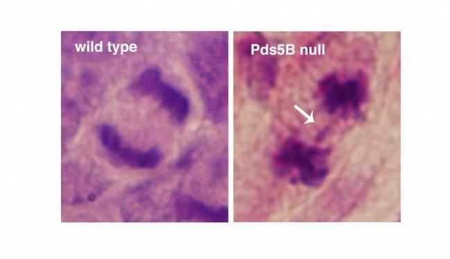 células que carecen de Pds5B y células normales
