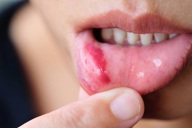 Labio con herpes simple. / Fotolia