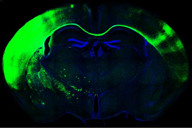 Cerebro de ratón, cuerpo calloso