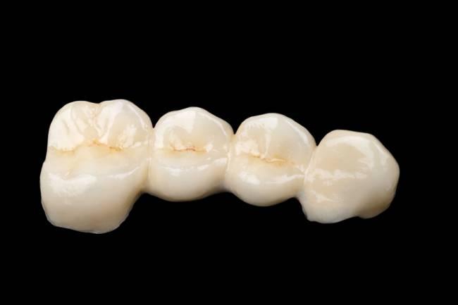 El esmalte que recubre nuestros dientes es el mismo que compartimos con otras especies de animales tetrápodos y peces.
