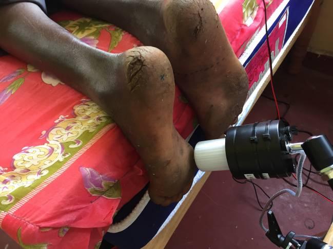 Dispositivo hecho a medida para medir la sensibilidad táctil del pie a diferentes frecuencias