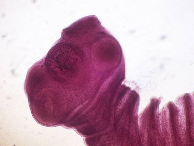 etapas larvales o intermedias de desarrollo de la tenia porcina