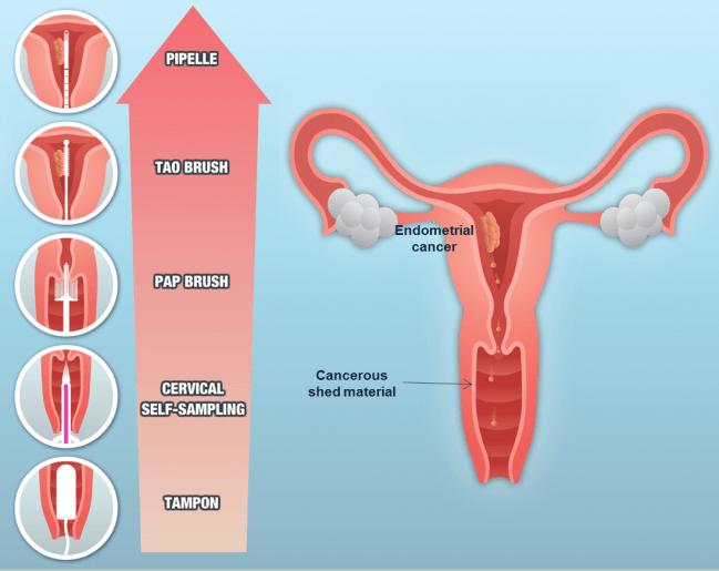 Tipos de muestreos en cáncer de endometrio