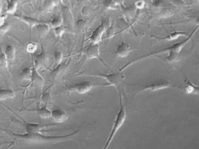 Investigadores del Instituto de Neurociencias de Castilla y León (INCYL) comprueban que un agente antitumoral que han patentado es efectivo en gliomas de pacientes