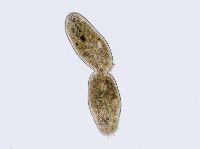 Imagen al microscopio de una ciliophora. / Wikipedia