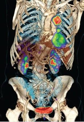 Imagen PET/CT