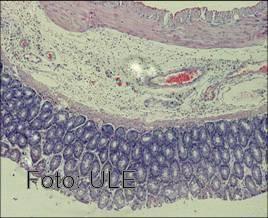 Prevención del daño histológico de un hígado de rata con colitis experimental por glutamina.