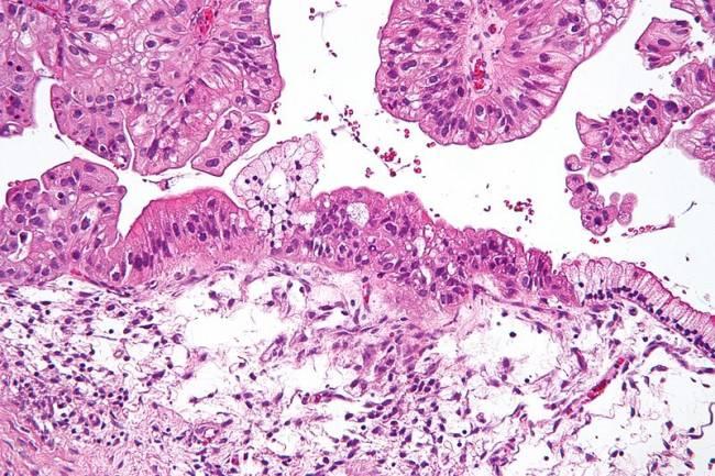 células cancerosas de ovario