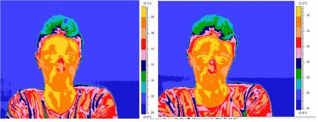 Imágenes obtenidas con el termógrafo