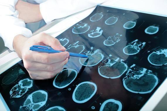Investigadores de la Universidad de León han probado que el ácido 2OAA tiene efectos neuroprotectores en ratas
