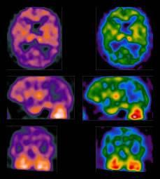 Cerebro afectado por enfermedad de Parkinson