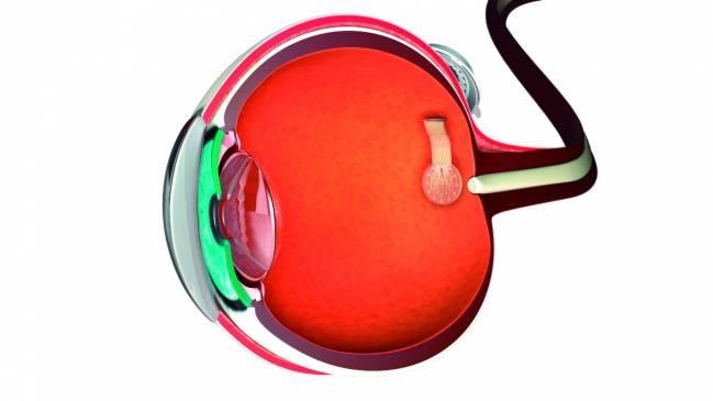 Prótesis de retina con estimuladores de grafeno